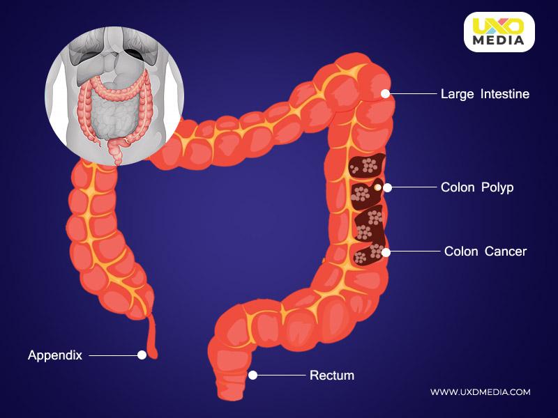 bowel cancer and treatment through ai