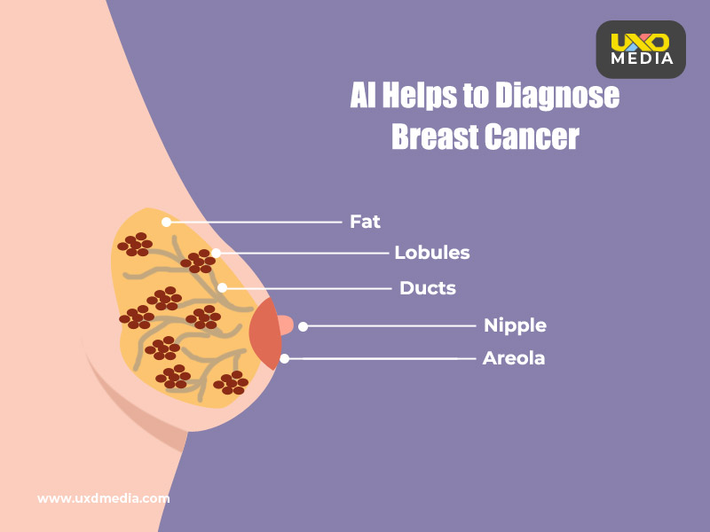 AI Could Help to Identify Breast Cancer