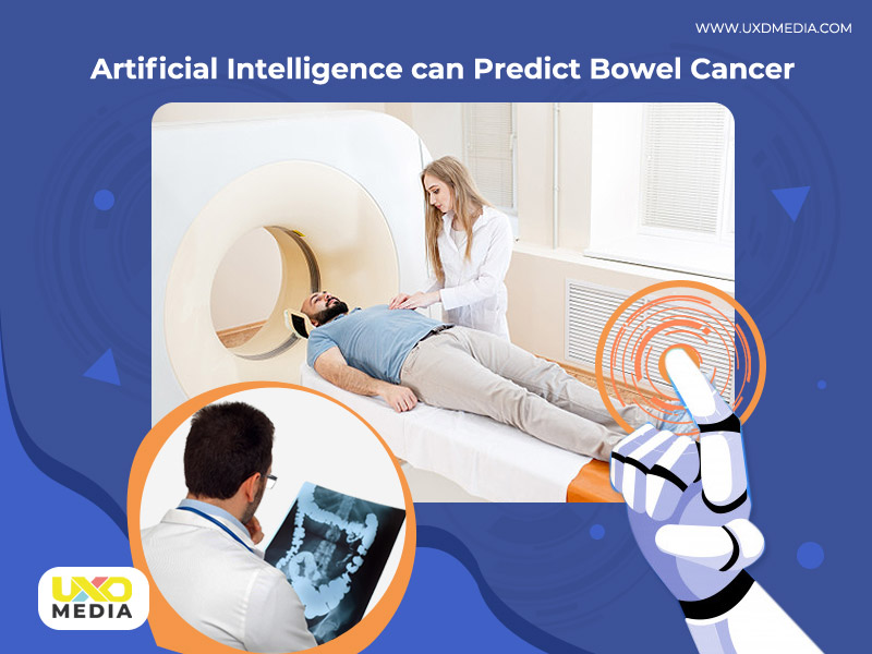 Artificial Intelligence can predict Bowel Cancer